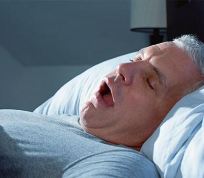 Sleep problems including snoring and obstructive sleep apnea (OSA)