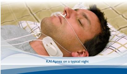 Best non-cpap option for sleep apne